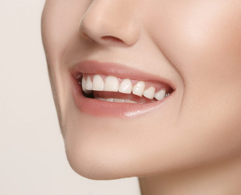 Smile O2dental Invisalign Vancouver
